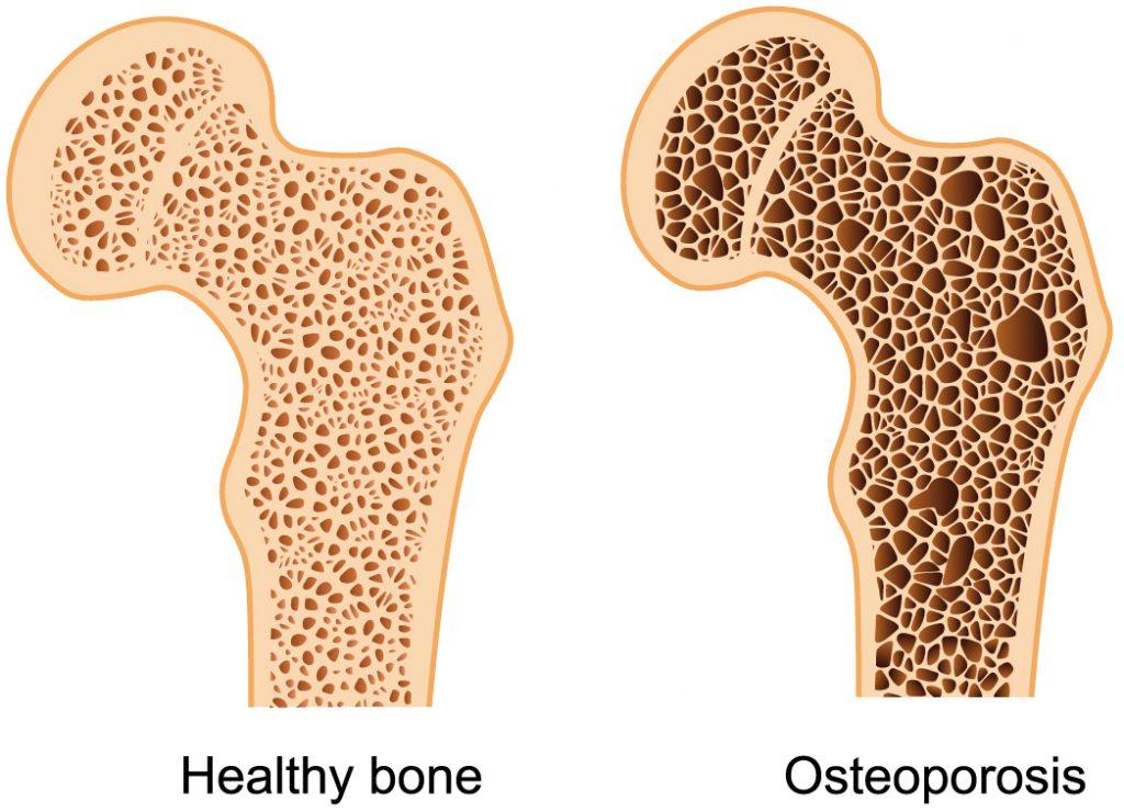 OSTEOPOROSIS ENTRENASALUD